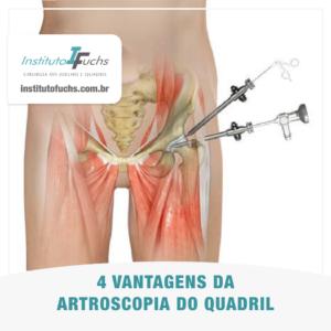 4 vantagens da artroscopia do quadril