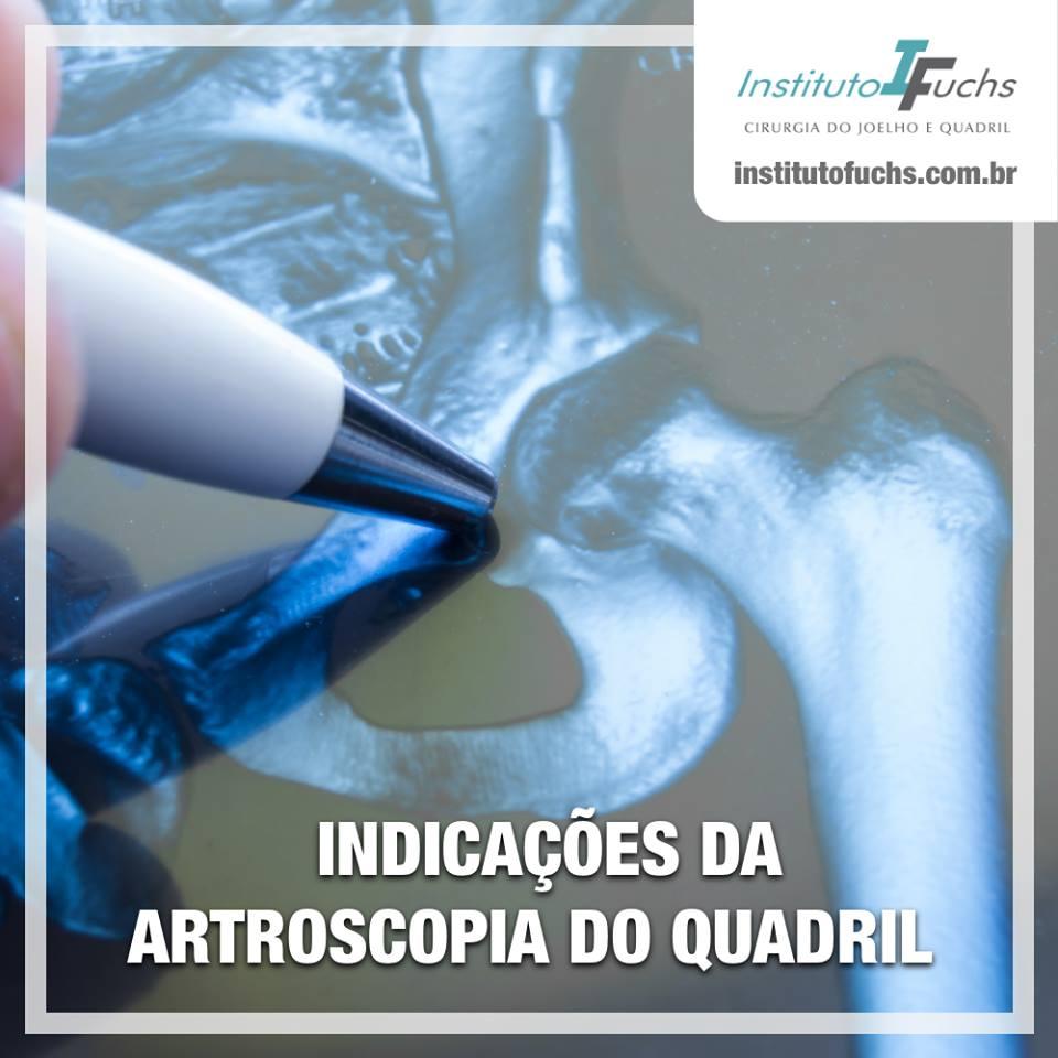 Indicações da artroscopia de quadril