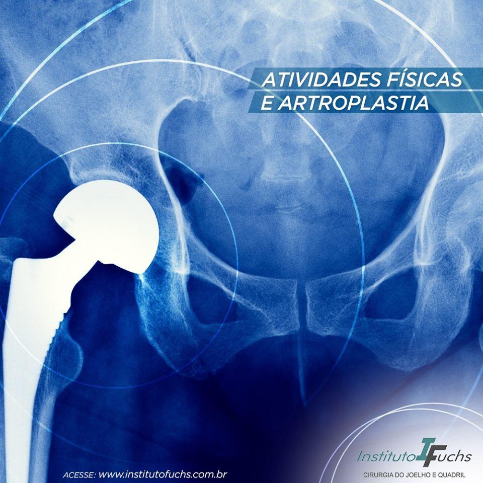 Atividades físicas e a artroplastia de quadril