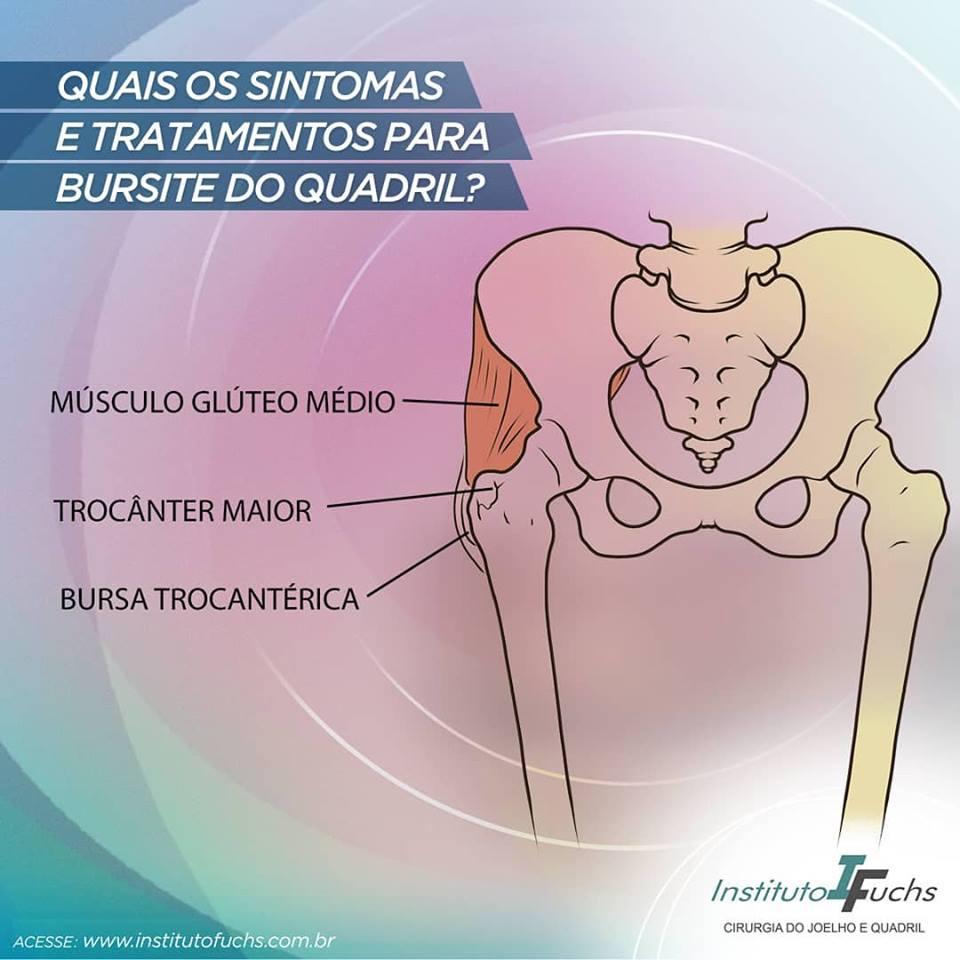 Quais os sintomas da bursite do quadril?
