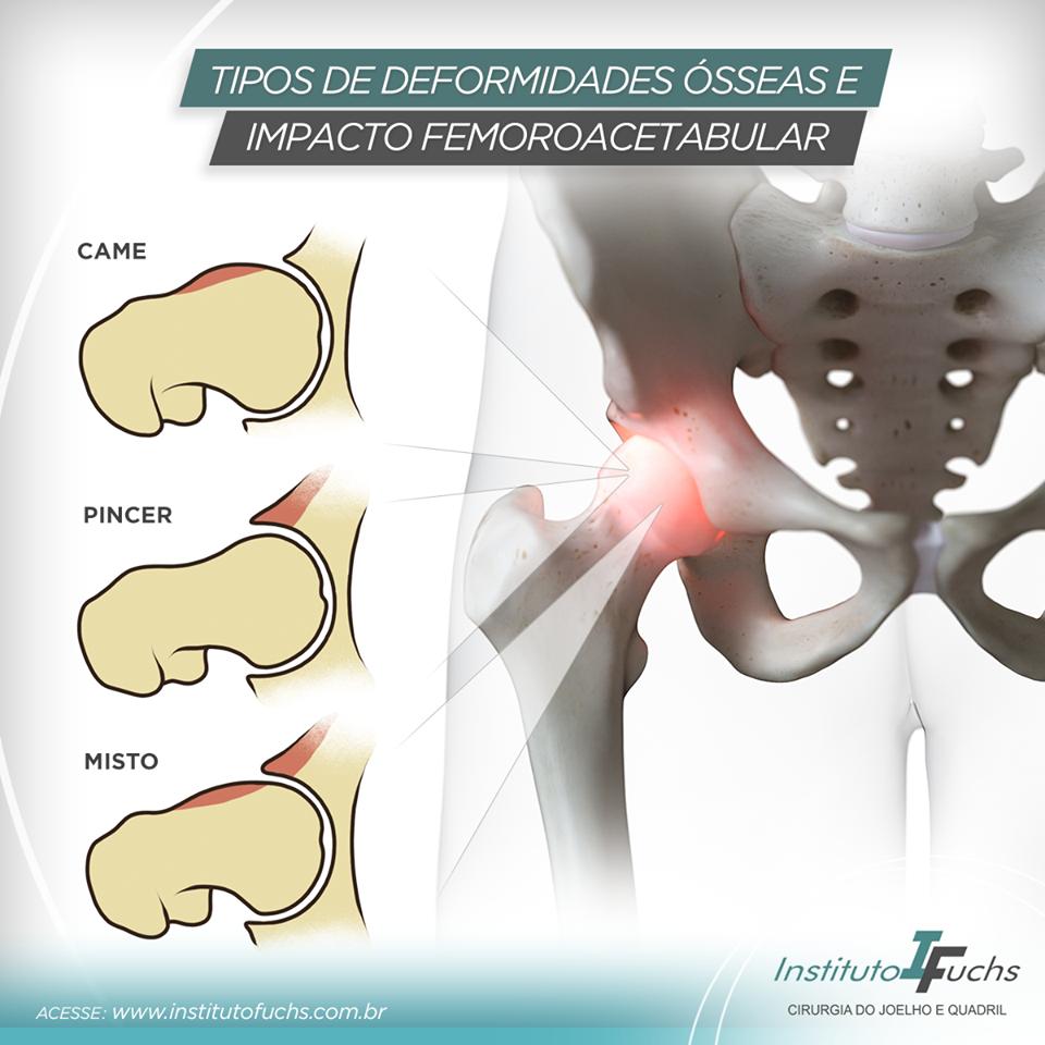 Tipos de deformidades ósseas e impacto femoroacetabular