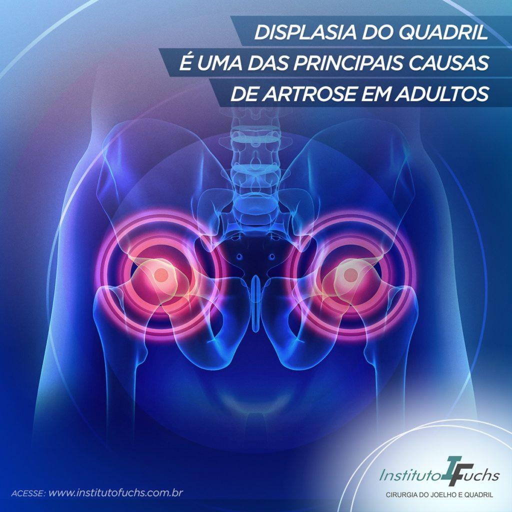 Displasia do quadril é uma das principais causas de artrose em adultos