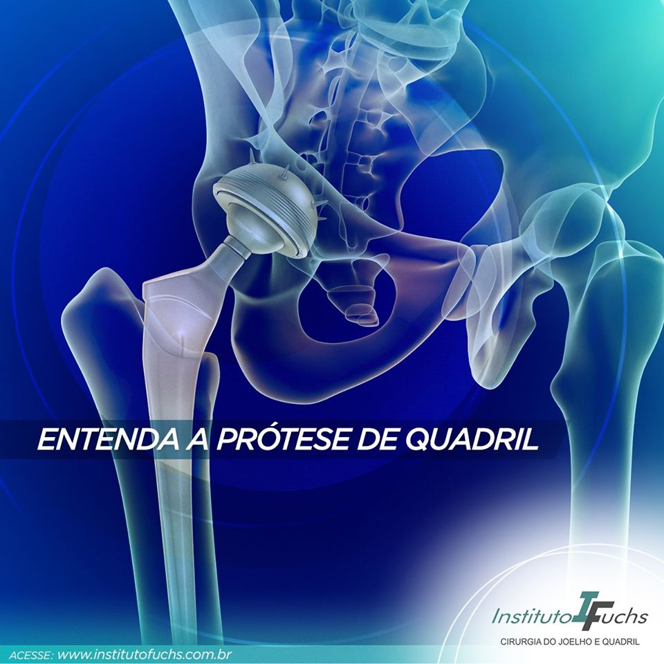 Entenda a prótese de quadril