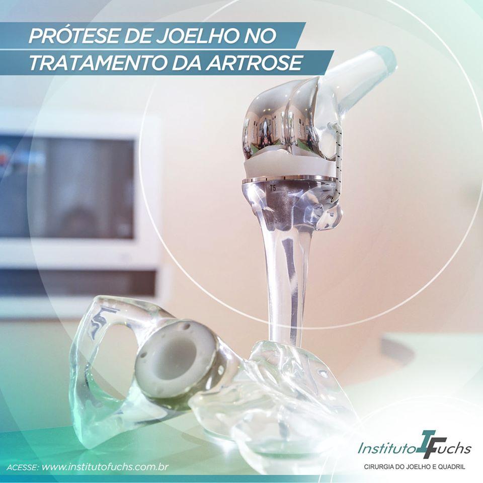 Prótese de joelho no tratamento da artrose