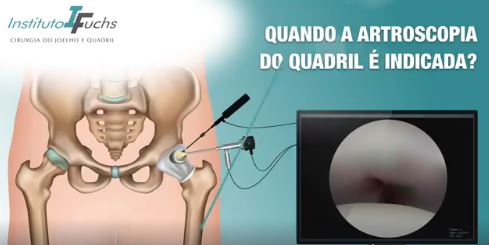 VÍDEO: Quando a artroscopia do quadril é indicada?