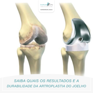 Saiba quais os resultados e a durabilidade da artroplastia do joelho