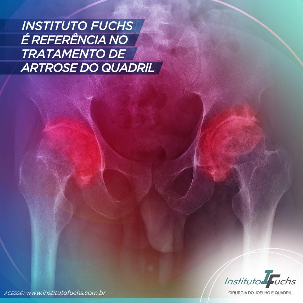 Instituto Fuchs é referência no tratamento de artrose do quadril em Curitiba