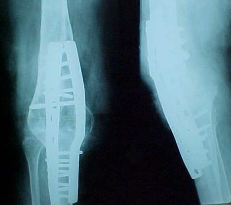 Fig. 3-B: Três meses de pós-operatório. Artrodese consolidada.