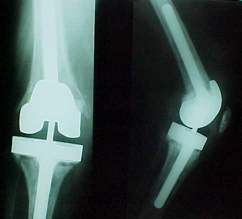 Fig. 4-A: Radiografias pré-operatórias de paciente de 66 anos, sexo feminino, pós-revisão de artroplastia.