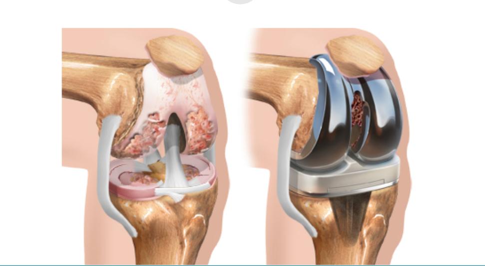 artroplastia do joelho site