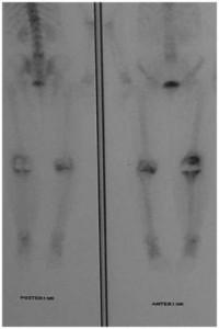 Fig.7-C – Cintilografia óssea com Tecnécio99 – 10 meses   Pós-ATJ com hipercaptação