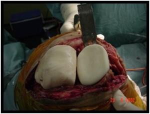 Fig.8-C – Espaçador móvel – cirurgia – confecção manual