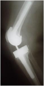Fig.10-B – Radiografia em perfil – 9 anos PO
