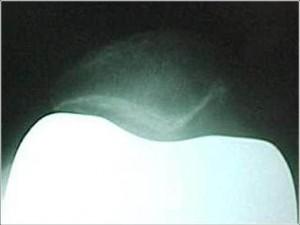 Fig. 8.2 – RX joelho – axial a 30° = ATJ sem substituição da patela – Fonte HNM