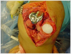 Fig. 8.4 – Artroplastia FP – pér-operatório – Fonte Dr. Fulkerson – Curso de FP / SBCJ / Florianópolis/SC-2004