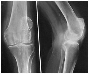 Fig. 8.5 – Artrose FP isolada = RX pré-operatório = Frente / perfil joelho – Fonte HNM