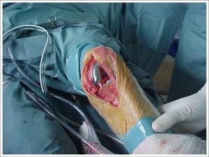 Fig. 8.7 – ATJ – Artrose FP isolada – Flexo-extensão pér-operatória sem luxação da patela – Fonte HNM