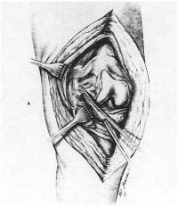 """Fig. 8.10 – Liberação ligamento FP lateral, levando a melhor exposição – Fonte """"Krackow KA, in patella in total knee artroplasty"""""""