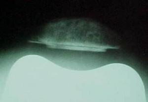 Fig. 8.1 – RX joelho – axial a 30° = ATJ com substituição da patela – Fonte Hospital Novo Mundo (HNM) / Curitiba-PR