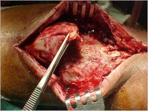 Fig. 8.21 – Lesão tendão patelar – pér-operatório - Fonte HNM