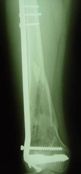 Fig.5-A/B – Fratura supra-intercondileana de fêmur consolidada com oito meses de                       pós-operatório.             Fonte: Hospital Novo Mundo / Curitiba-PR.