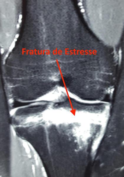 fratura por estresse no joelho