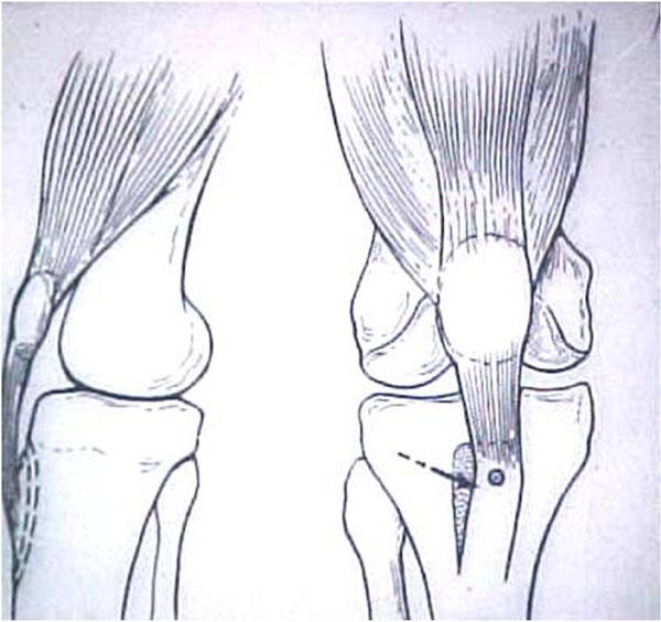 Fig.16 – Desenho - Medialização da TAT – Cirurgia de Elmslie-Trillat