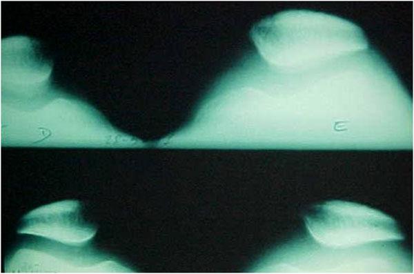 Fig.5 – Radiografia axial de patela – ângulo da tróclea