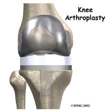 joelho-artroplastia