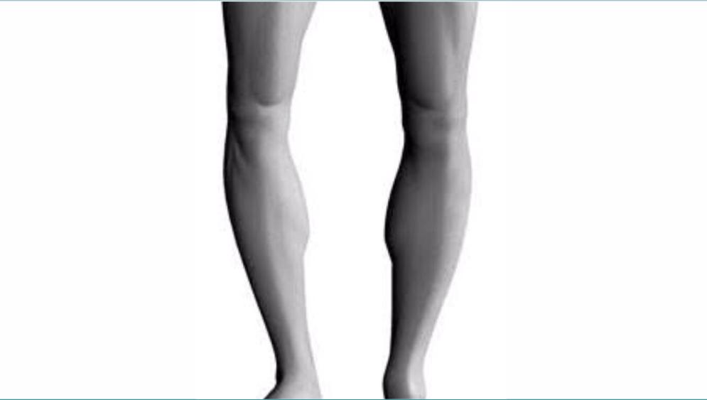 joelho torto 1