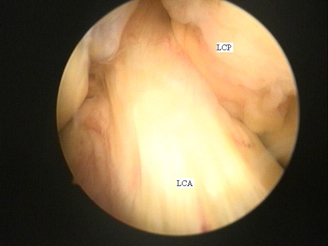 Fig.3-A = Artroscopia. LCA e LCP normal