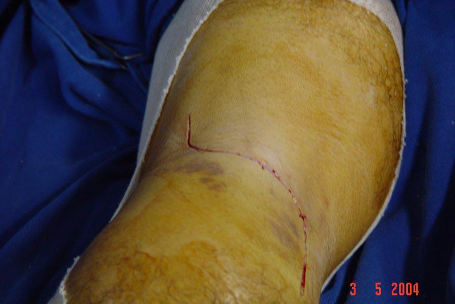 acesso posterior ao joelho