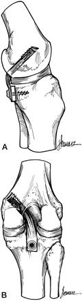 """A = Fixação tibial """"inlay""""             B = Fixação transtibial"""