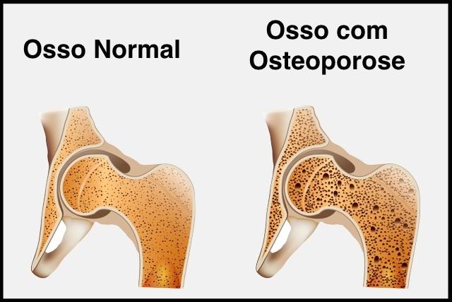 Dr. Thiago Fuchs participa ao vivo de entrevista na Rádio CBN sobre osteoporose