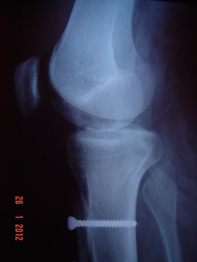 Radiografia em perfil pós-operatória – Realinhamento patelar distal