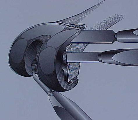 Fig.8-A – Esquema de retirada do componente femoral – osteótomos