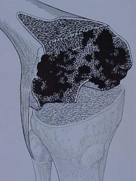 Fig.11-A – Esquema de defeito ósseo femoral