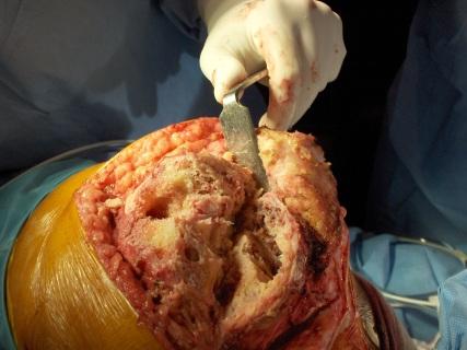 Fig.11-C – Defeitos ósseos - cirurgia