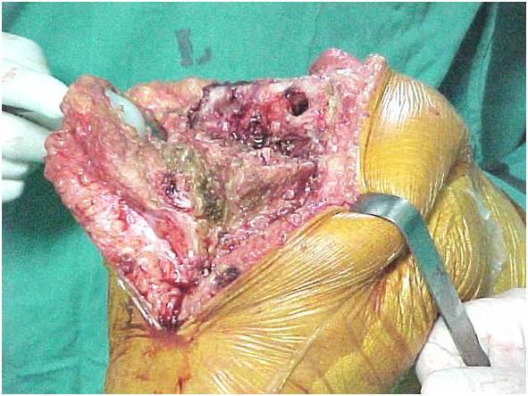 Fig.26-A – Defeito moderado no fêmur e tíbia – pér-operatório