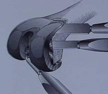 Fig.8-A – Retirada do componente femoral – Osteótomos finos