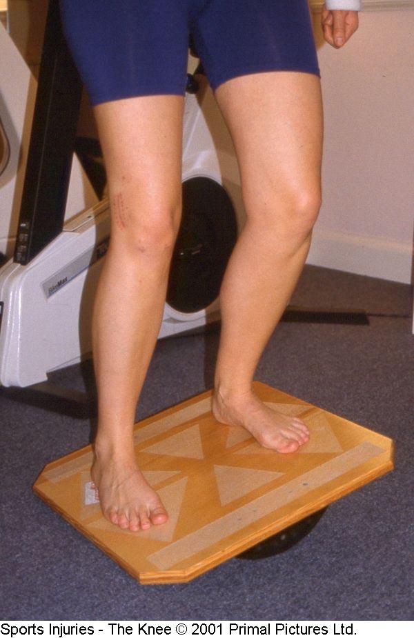 Fig. 16. Treinamento propriocepção em prancha de balanço bipodal