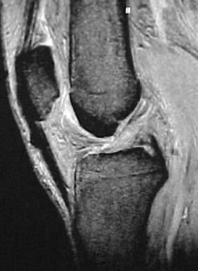 Fig.6 – Ressonância magnética – 21 anos PO