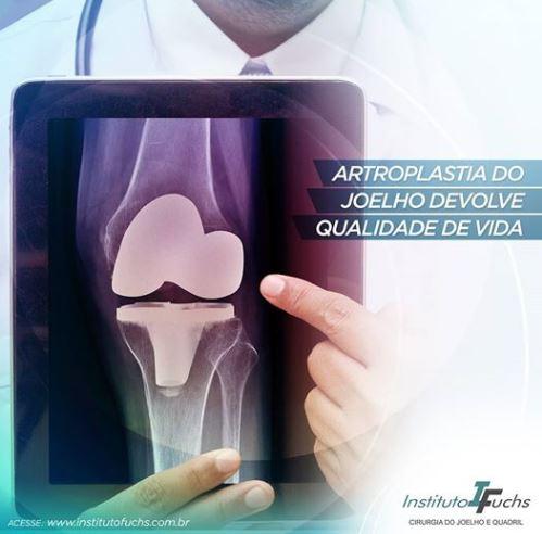 Artroplastia do joelho devolve qualidade de vida