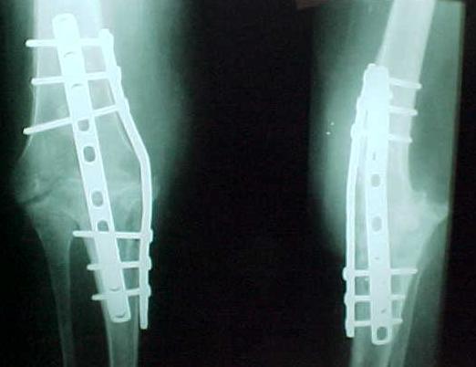 Fig. 1: Placa anterior e medial