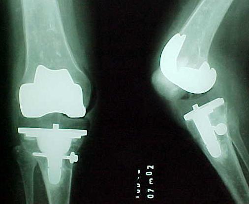 Fig. 2-A: Radiografias pré-operatórias de paciente de 42 anos, sexo feminino e portadora de artrite reumatóide