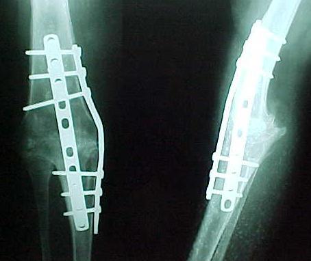 Fig. 2-C: Pós-operatório = 3 meses / artrodese consolidada