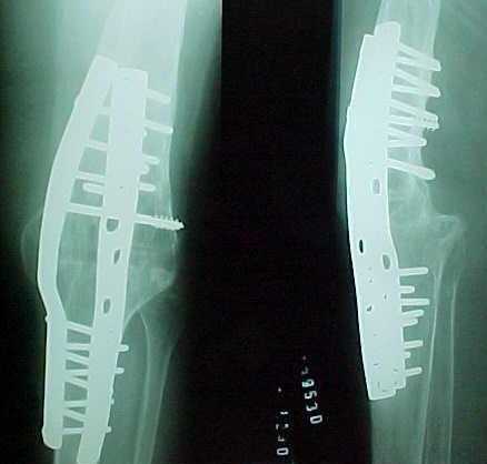 Fig. 3-C: 31 meses de pós-operatório.