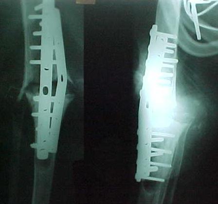 Fig. 4-B: Pós-operatório imediato mostra pouco contato ósseo