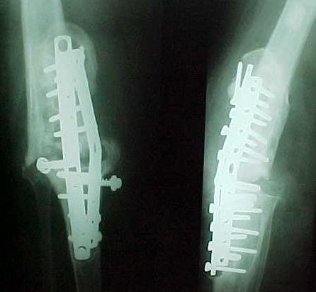 Fig. 4-C: 17 meses de pós-operatório mostra artrodese não consolidada