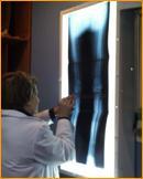 Figura 1 (a,b): o adequado planejamento pré-operatório, que inclua radiografia de todo o membro inferior para verificar o eixo mecânico, pode antecipar a necessidade do uso de enxertos ósseos ou aumentos metálicos.